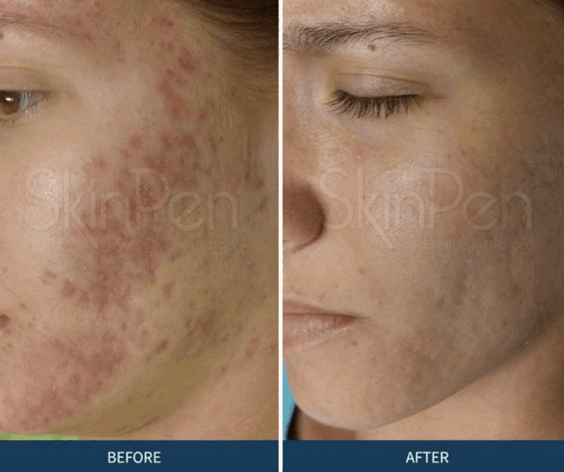 SkinPen Collagen Induction Therap