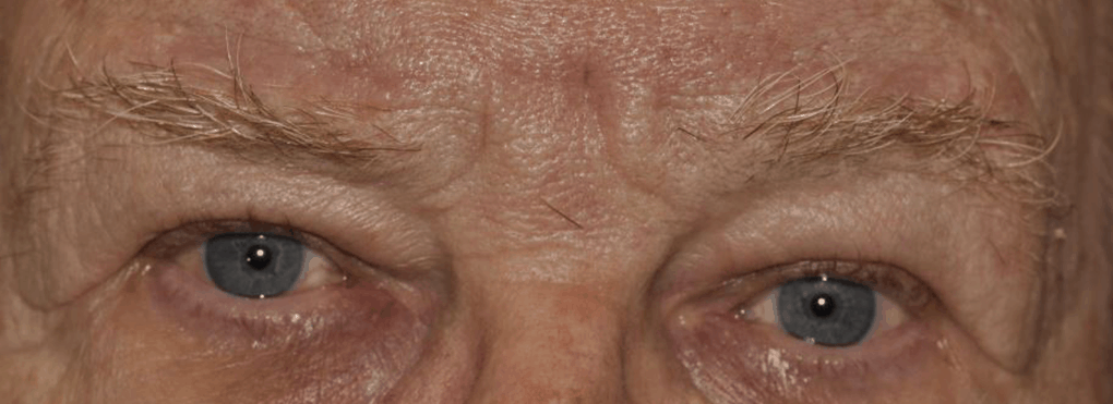Picture of man's eyes after oculoplastic surgery