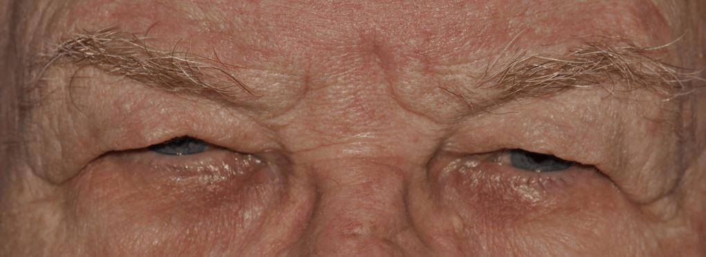 Picture of man's eyes before oculoplastic surgery